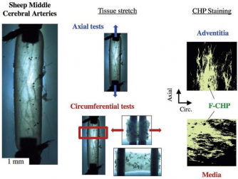 Molecular-level collagen damage explains softening and failure of arterial tissues: A quantitative interpretation of CHP data with a novel elasto-damage model