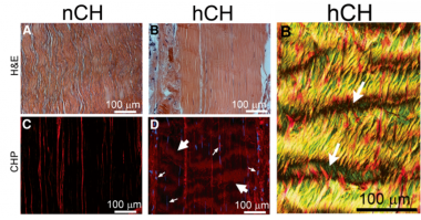 The impact of cholesterol deposits on the fibrillar architecture of the Achilles tendon in a rabbit model of hypercholesterolemia