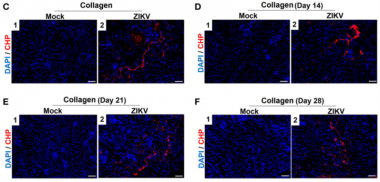Zika Virus Infection Induces Acute Kidney Injury Through Activating NLRP3 Inflammasome Via Suppressing Bcl-2