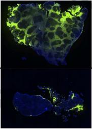 Quantitative Liver Fibrosis Using Collagen Hybridizing Peptide to Predict Native Liver Survival in Biliary Atresia: A Pilot Study