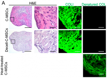 Clumps of Mesenchymal Stem Cell/Extracellular Matrix Complexes Generated with Xeno-Free Conditions Facilitate Bone Regeneration via Direct and Indirect Osteogenesis