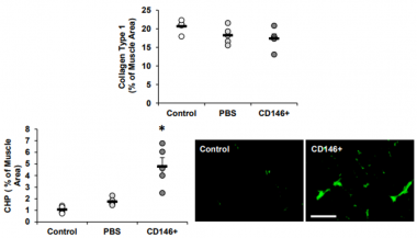 The Impact of Skeletal Muscle Contraction on CD146+Lin- Pericytes