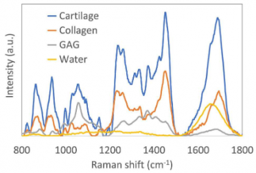 Raman Spectroscopy: Guiding Light for the Extracellular Matrix