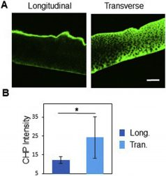 New Research Evaluates Anisotropic Nature of Cartilage Wear and Tear